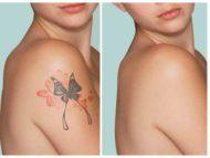 Лазерное удаление татуировок и пигментных пятен