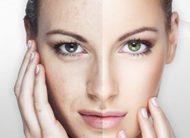 Лазерные технологии омоложения кожи
